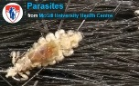 There are about 100 species of parasites that can be found in humans