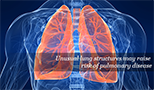 Unusual lung structures may raise risk of pulmonary disease