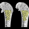MicroCT of the aging Bone with Reduction in Trabecular Bone (older bone on the left). Photo: David Goltzman